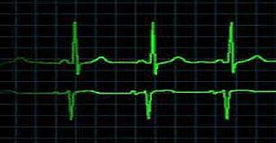 heart-0012